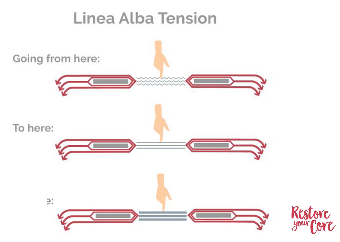 linea alba stretching