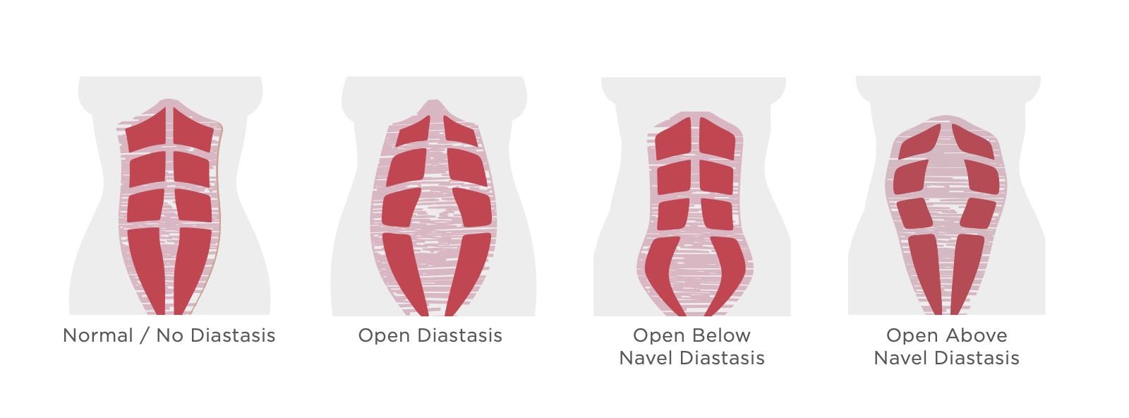 rectus abdominis separation