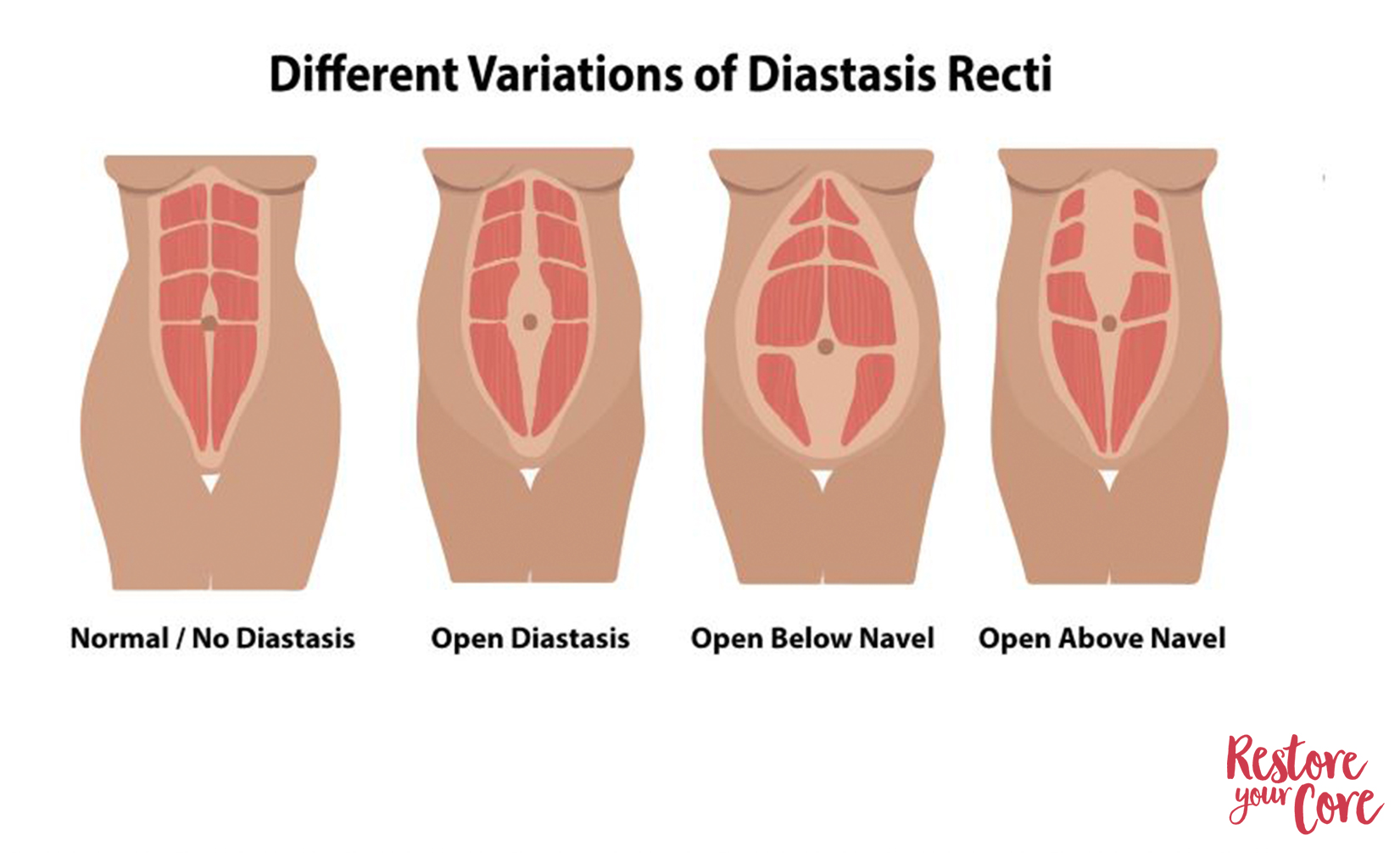diastasis recti range